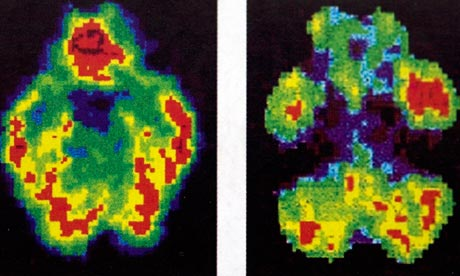 Scans-of-a-normal-brain-l-008