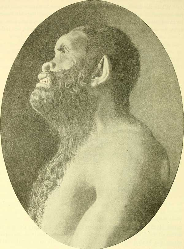 Artist's conception of Neanderthal 1887